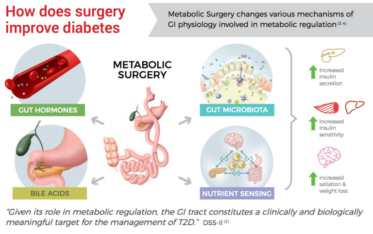 How Does Surgery Improve Diabetes
